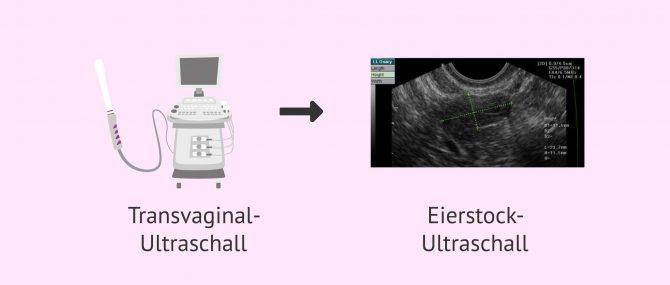 Imagen: Antralfollikelzählung mittels transvaginaler Ultraschalluntersuchung