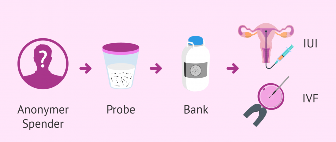 Imagen: Wie eine Samenspende durchgeführt wird
