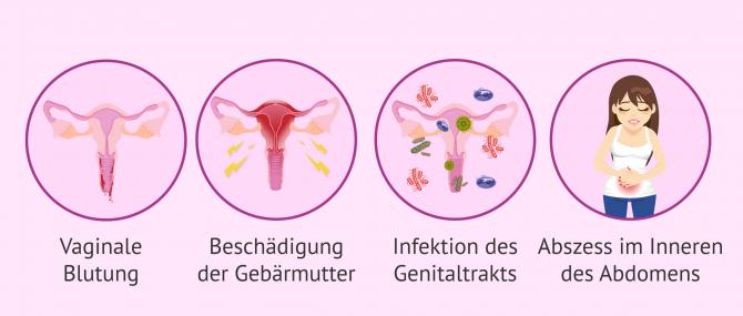 Imagen: Mögliche Auswirkungen und Risiken eines Schwangerschaftsabbruchs