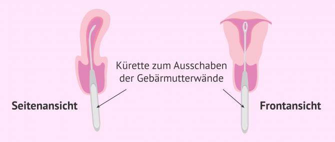 Imagen: Kürettage oder Ausschabung der Gebärmutterwände