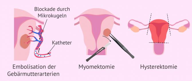 Imagen: Invasive Behandlungsmethoden bei Myomen