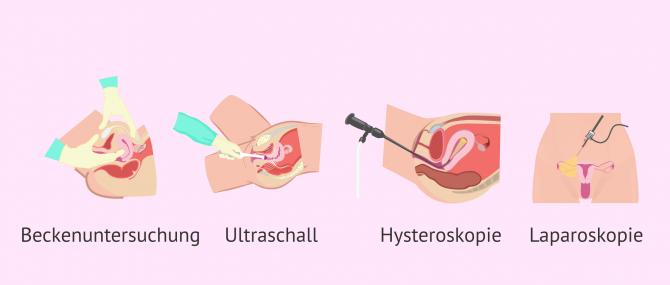 Imagen: Methoden zur Diagnose von Myomen