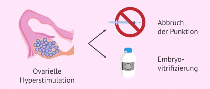Imagen: Maßnahmen um OHSS zu vermeiden