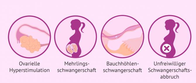 Imagen: Risiken künstliche Befruchtung