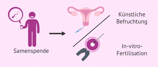 Imagen: Samenspende für eine künstliche Befruchtung oder einer IVF