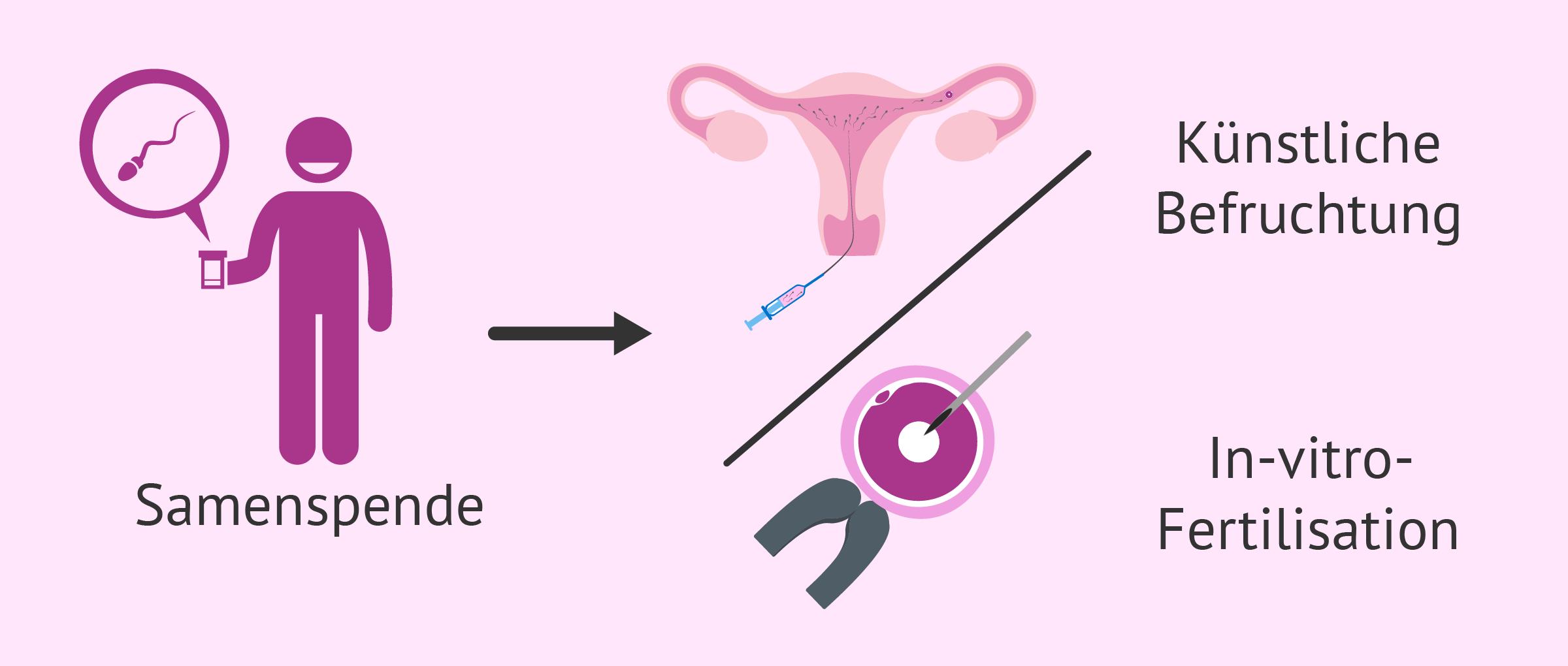 Samenspende für eine künstliche Befruchtung oder einer IVF