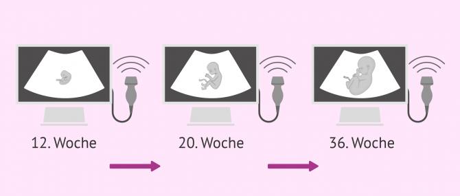 Imagen: Ultraschall während der Schwangerschaft