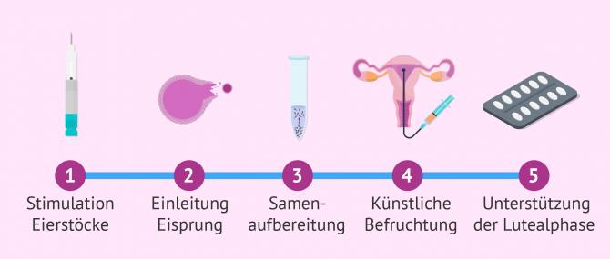 Imagen: Schritte in der künstlichen Befruchtung