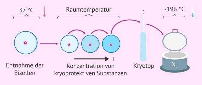 Imagen: Vorgang bei Eizellenvitrifizierung