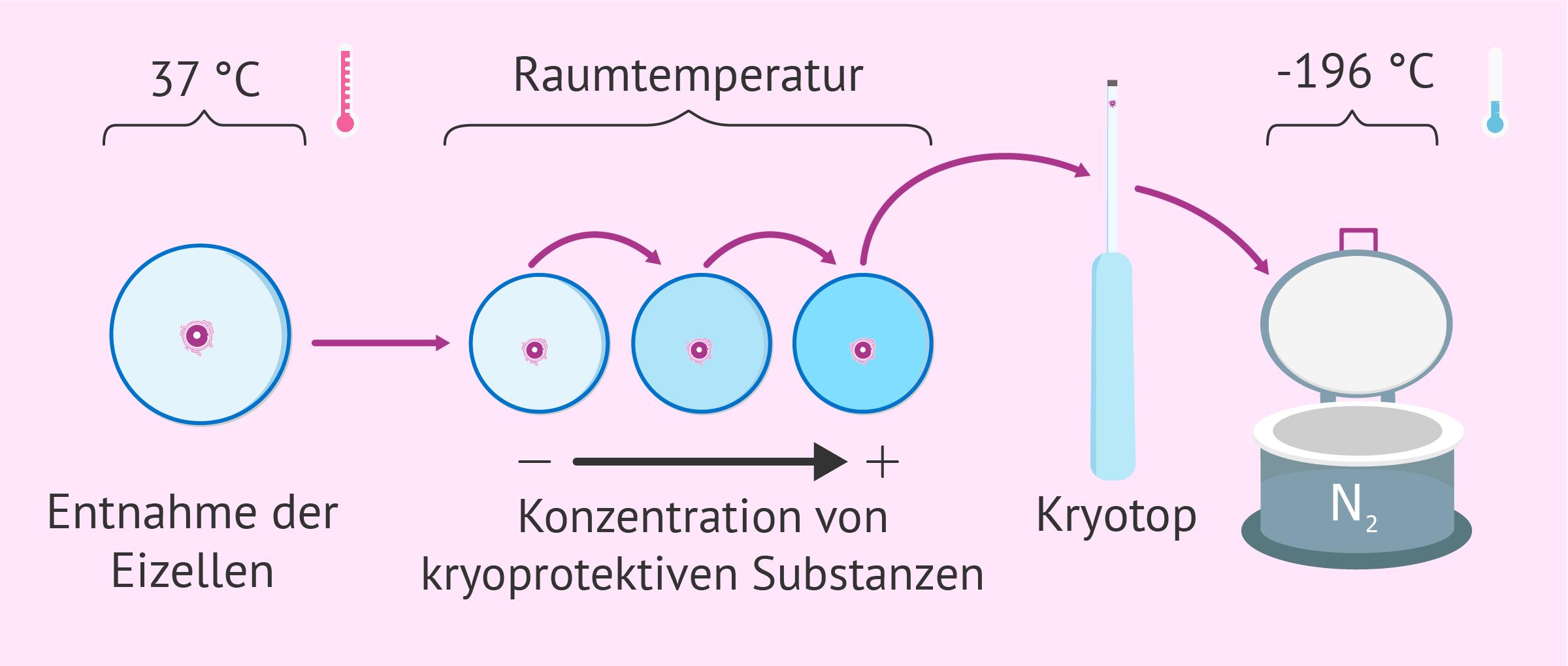 Kryokonservierung und Vitrifizierung