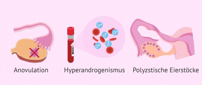 Imagen: Diagnose der PCSO mithilfe der Rotterdammer Kriterien