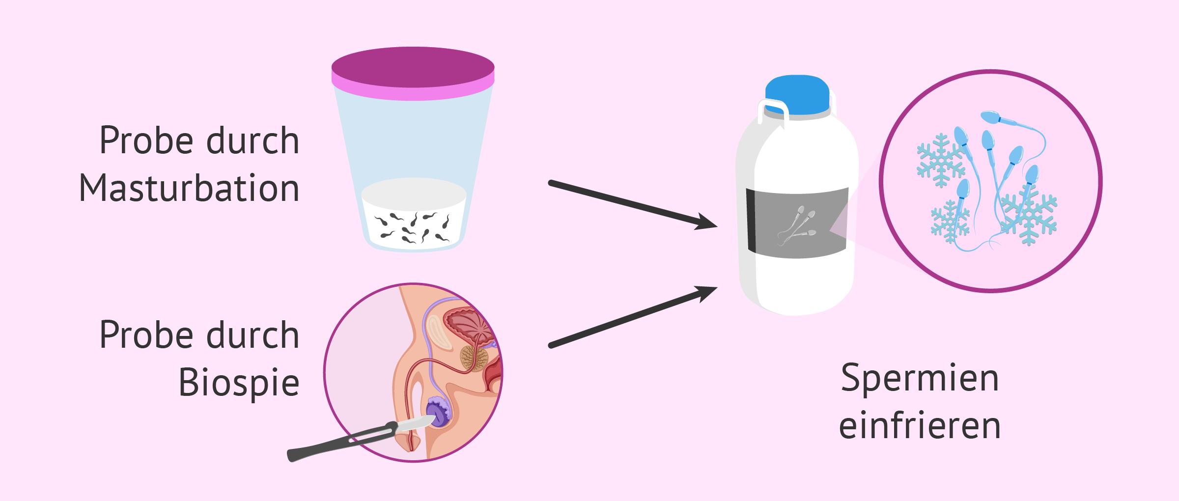 Medical Freezing: Fruchtbarkeit bei Krebspatienten bewahren