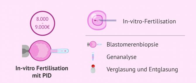 Imagen: Kosten einer IVF mit PID