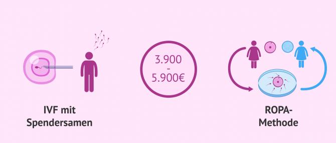Imagen: Kosten der IVF-Behandlung mit Samenspende