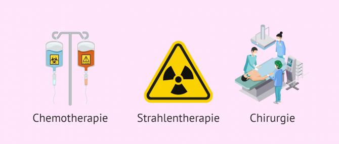 Imagen: Durch Krebsbehandlung ausgelöste Unfruchtbarkeit