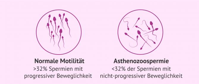 Imagen: ICSI wegen Beweglichkeitsproblemen bei Spermien
