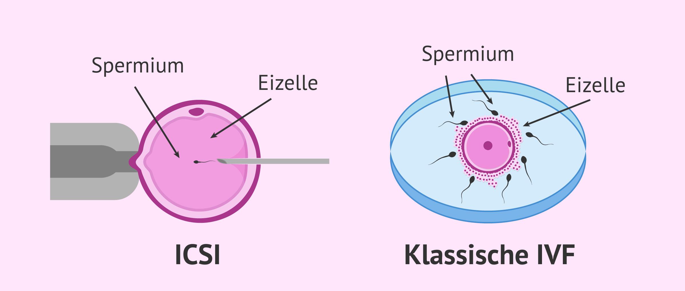 Intrazytoplasmatische Spermieninjektion (ICSI)