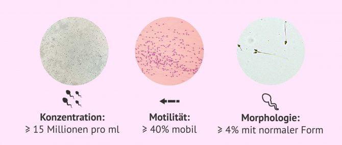Imagen: Mikroskopische Untersuchung des Samens