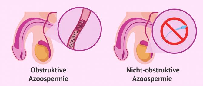 Imagen: Arten von Azoospermien