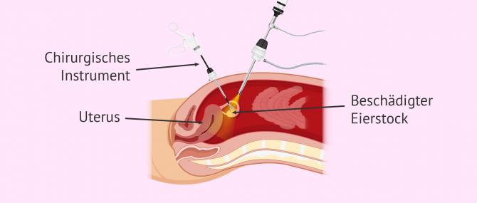 Imagen: Mit Krebs befallener Eierstock wird mithilfe einer Operation entfernt