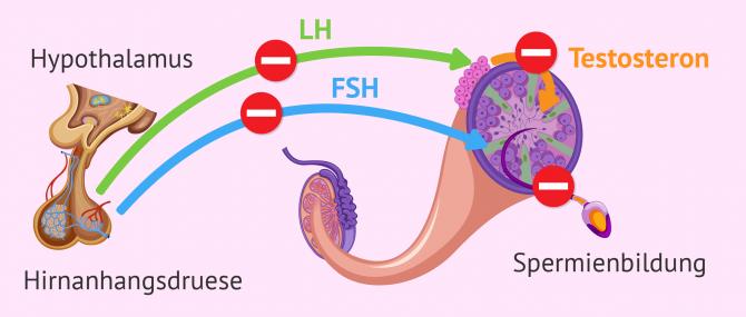 Imagen: Endokrinologischer Faktor bei männlicher Unfruchtbarkeit
