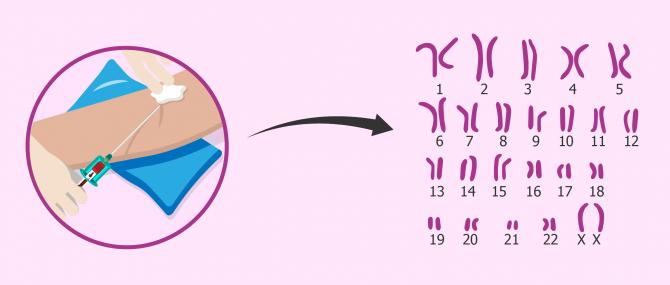 Imagen: Karyotyp um die Sterilität chromosomischen Ursprungs zu untersuchen