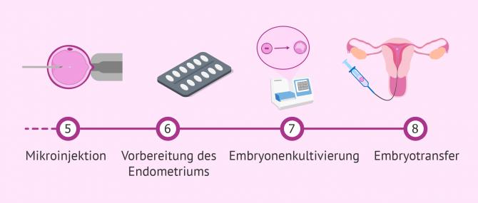 Imagen: Letzte Etappen im ICSI-Prozess
