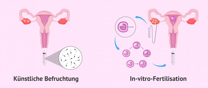 Imagen: Die wichtigsten Methoden in der assistierten Reproduktion