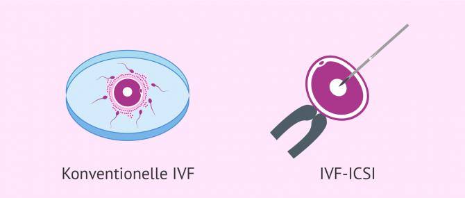 Imagen: konventionelle IVF oder ICSI