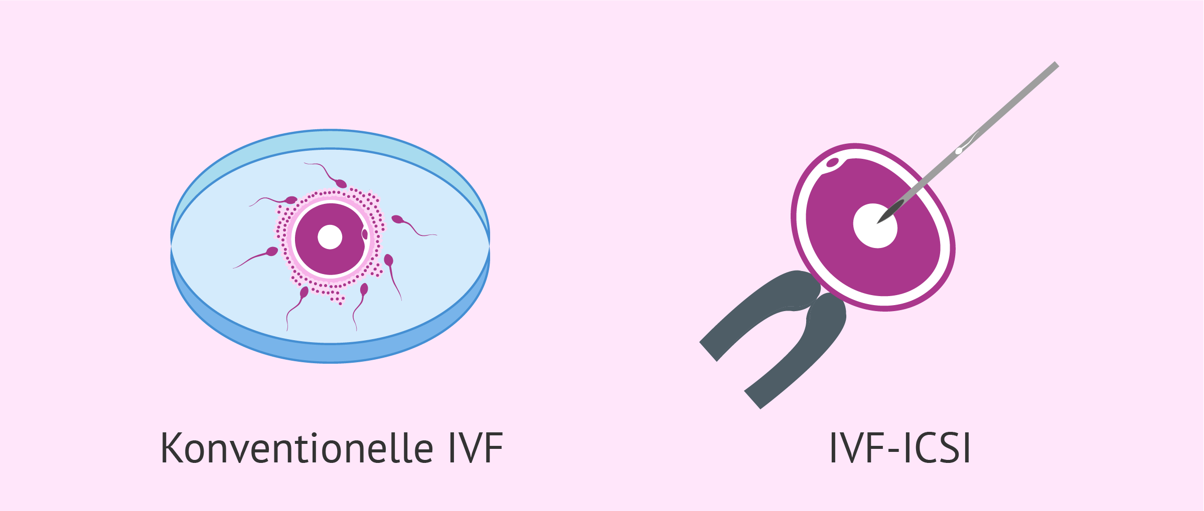 Die In-vitro-Fertilisation (IVF)