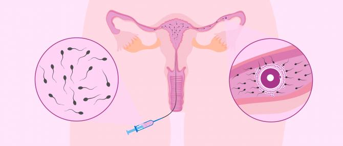 Imagen: Die intrauterine Insemination