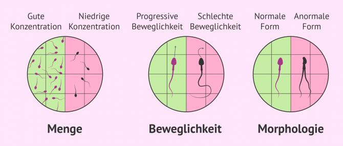 Imagen: Mobilität und Vitalität der Spermien