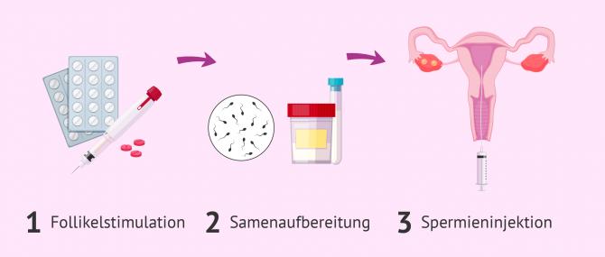 Imagen: Intrauterine Insemination (IUI)