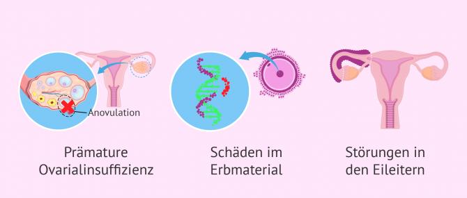 Imagen: Probleme in der Fruchtbarkeit bei Krebspatientinnen