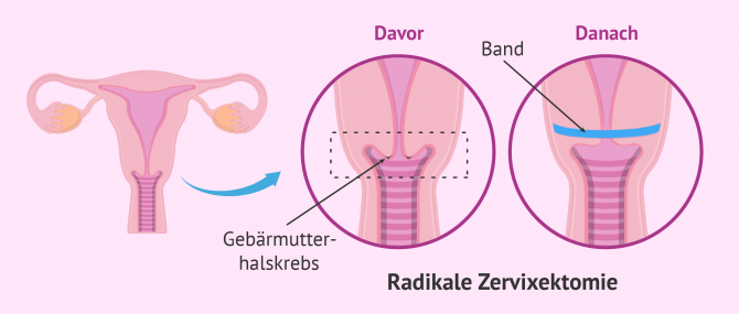Imagen: Radikale Zervixektomie