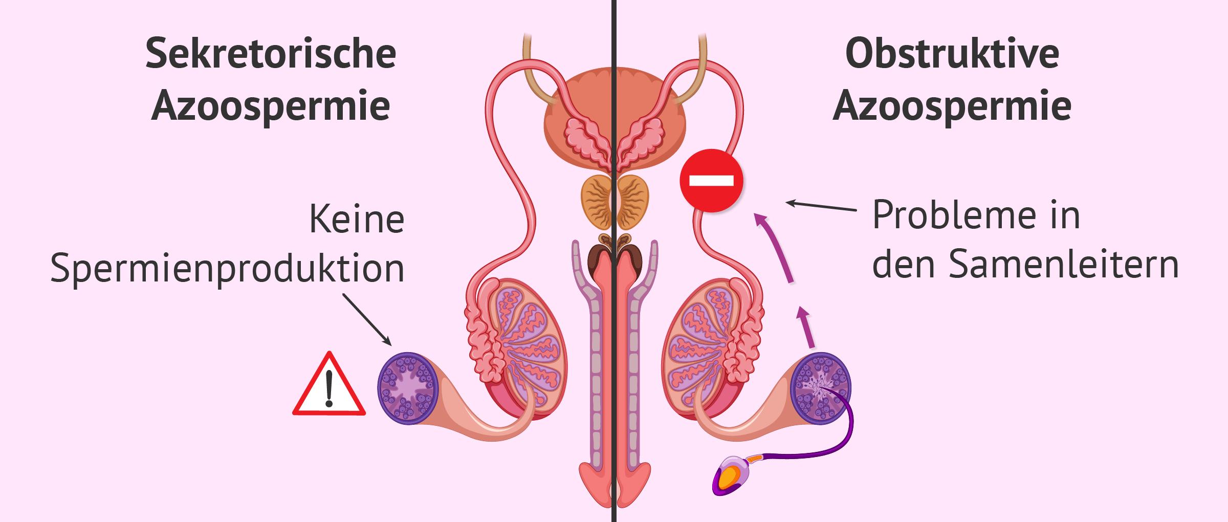 Die Azoospermie