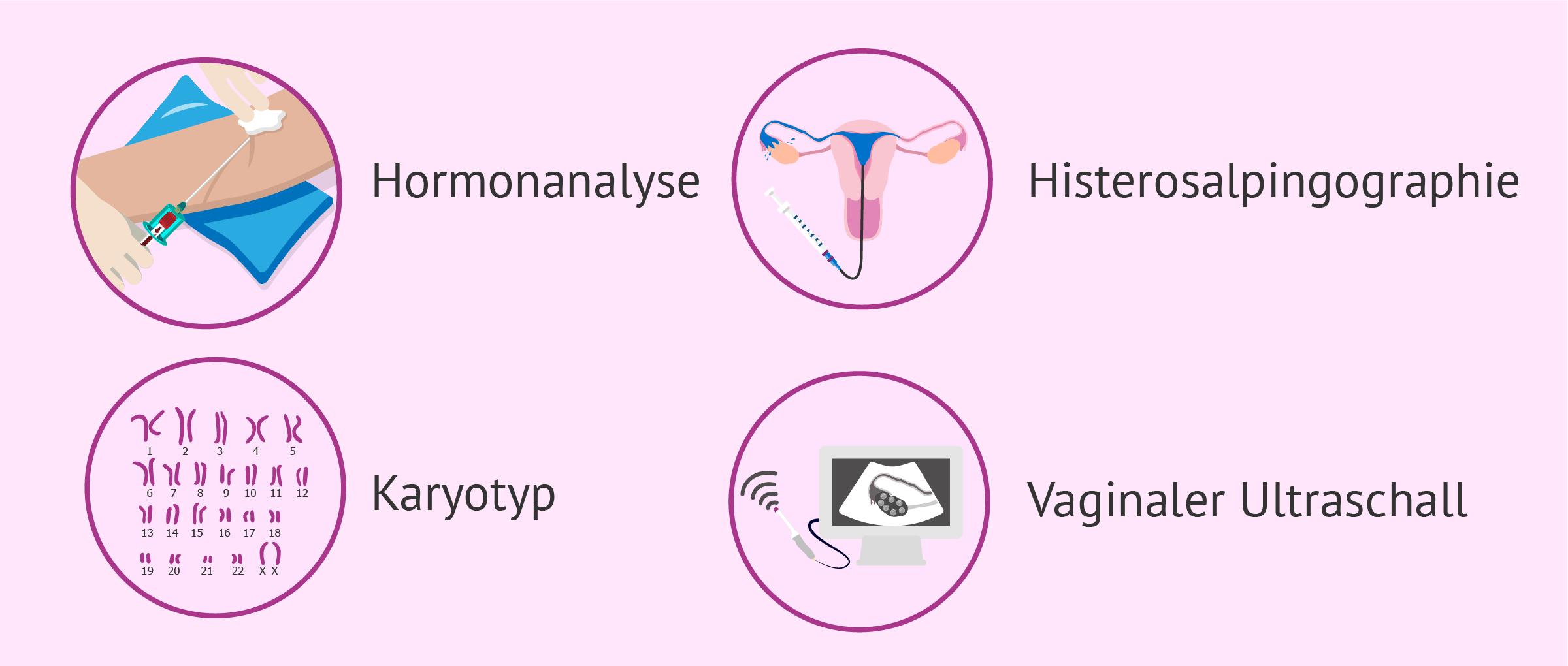 Tests zur weiblichen Infertilität
