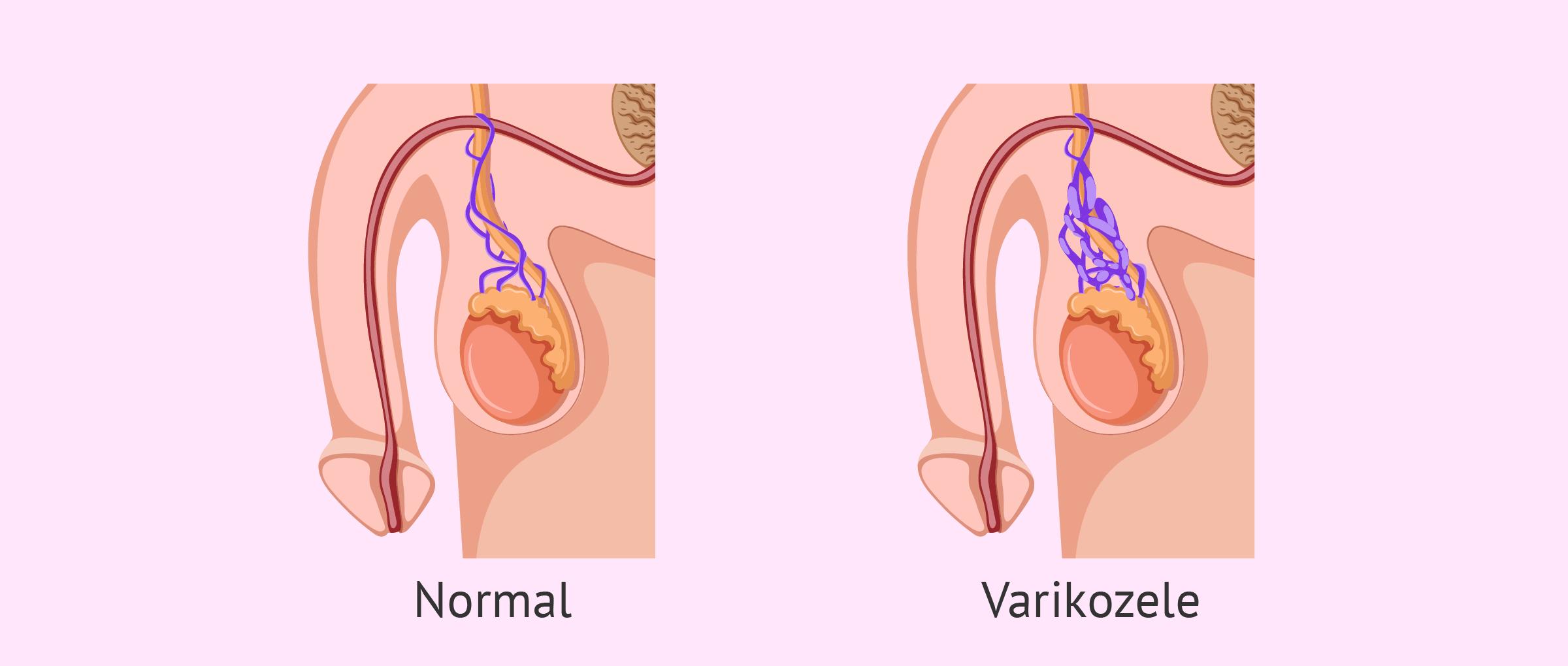 Was ist eine Varikozele? Ursachen, Symptome und Behandlung