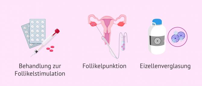 Imagen: Vitrifizierung Eizellen bei Krebsbehandlung