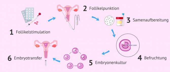 Imagen: Vorgänge in der In-vitro-Fertilisation