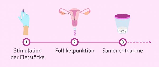 Imagen: Erste Schritte in einem IVF-Zyklus