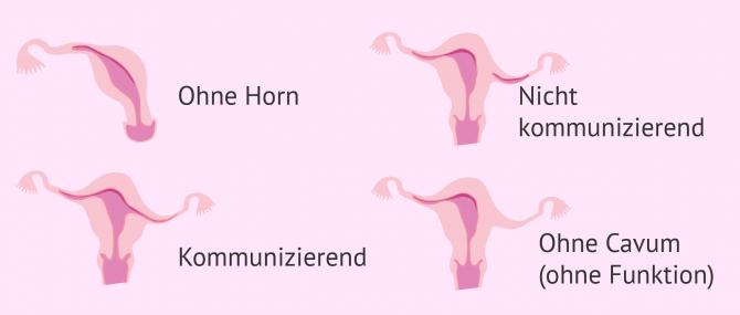 Imagen: Arten von Uterus unicornis