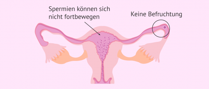 Imagen: Astenozoospermie