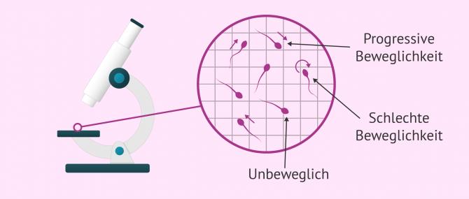 Imagen: Beweglichkeit der Spermien im Mikroskop untersuchen
