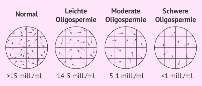 Imagen: Schweregrade von Oligospermie in der Samenprobe