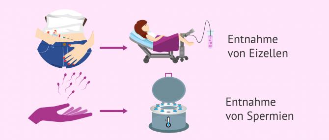 Imagen: IVF-Zyklus mit Spendersamen