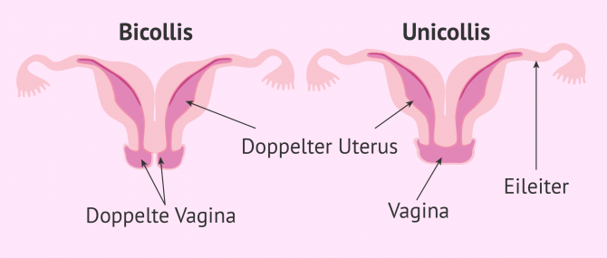 Imagen: Uterus didelphys