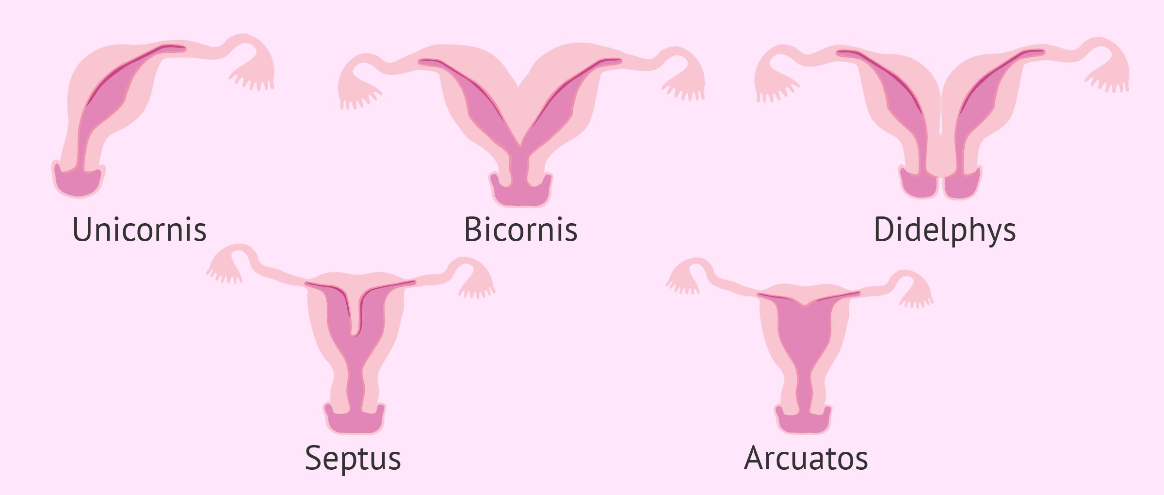 Gebärmuttererkrankungen