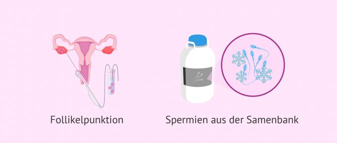 Imagen: Follikelpunktion IVF