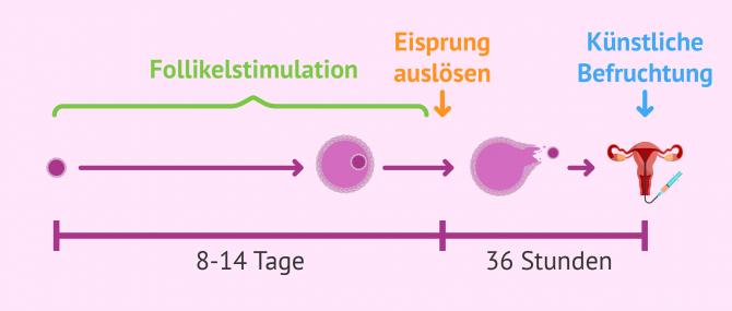 Imagen: Follikelstimulation bei künstlicher Befruchtung